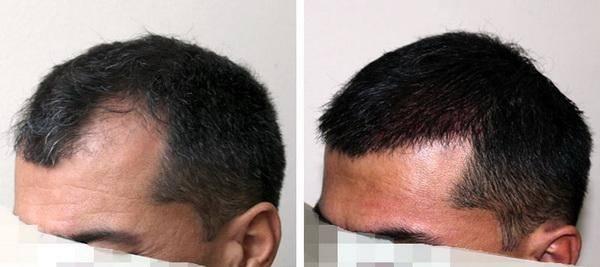 dầu gội mọc tóc cho nam