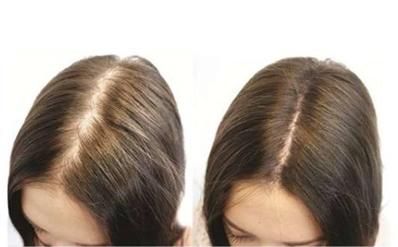 Dầu gội giúp mọc tóc nhanh